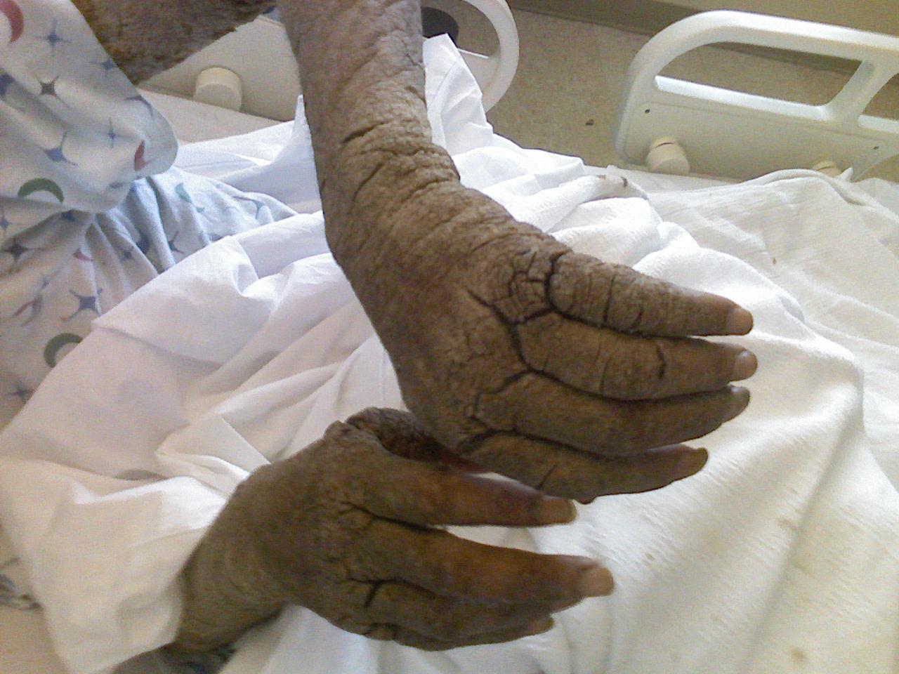vörös száraz foltok a kezeken viszketnek pikkelysömör kezelése Essentuki-ban