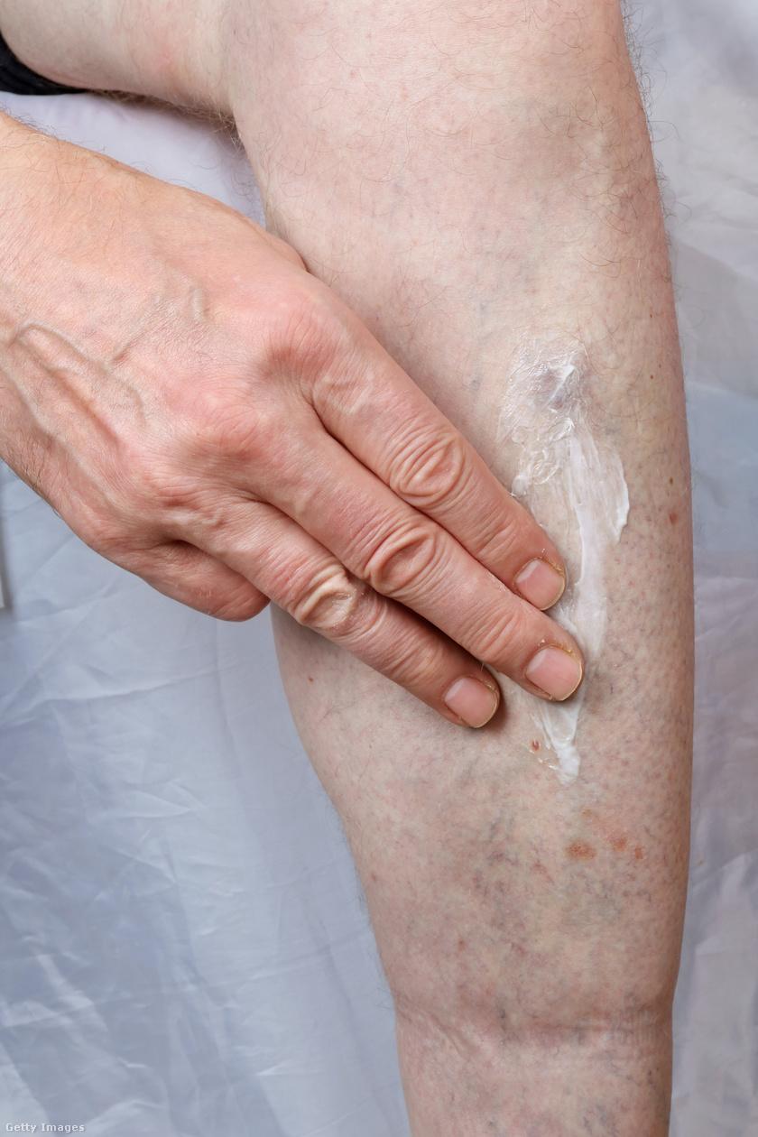 hogyan kezeljük a lábakon lévő vörös foltokat cukorbetegségben