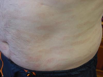 mycosis of the skin kenőcs pikkelysömörhöz