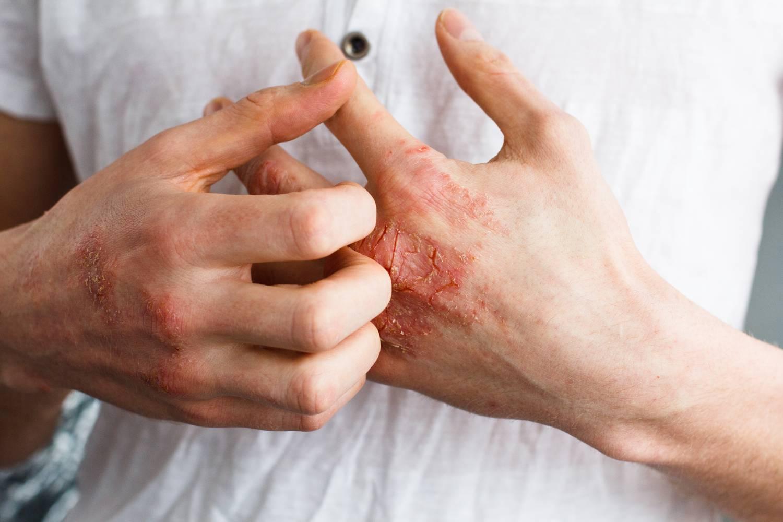 foltok a bőrön vörös szegéllyel pikkelysömör egészséges bőr