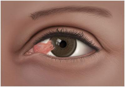 vörös foltok a szem körül hogyan lehet eltávolítani