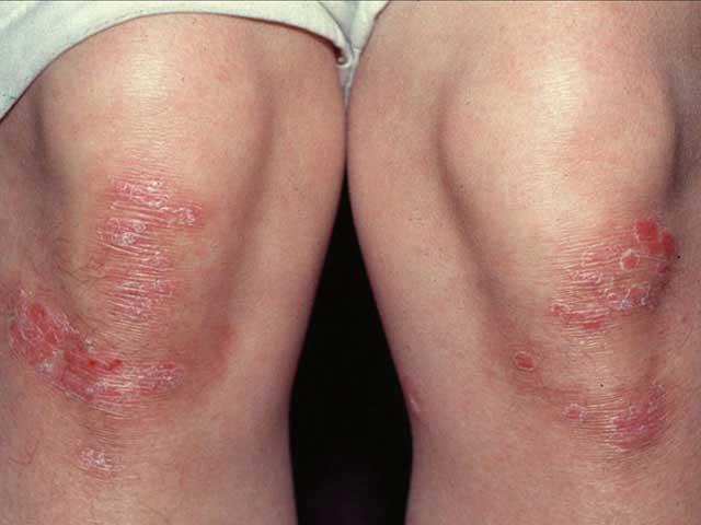 gyógyítja a pikkelysömör ásványvizekkel vörös foltok a bőrön viszkető