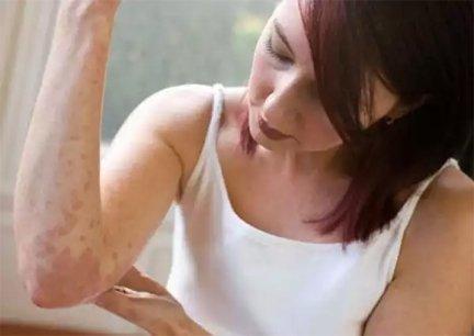 vörös foltok a testen viszketnek és lehúzódnak a fénykép pikkelysömör diéta gyógyszer