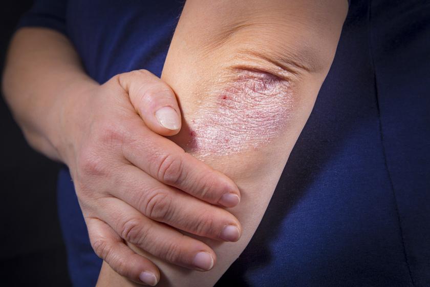 hogyan lehet teljesen pikkelysömör gyógyítani vörös foltok a fenéken a lábán