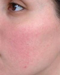 miért vannak vörös foltok az arcomon