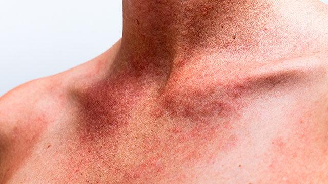 vörös foltok a leégés utáni kezelés után)
