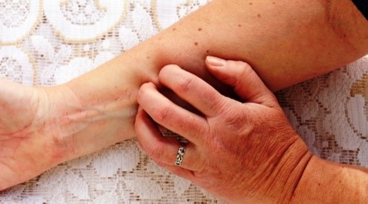 psoriasis and female infertility